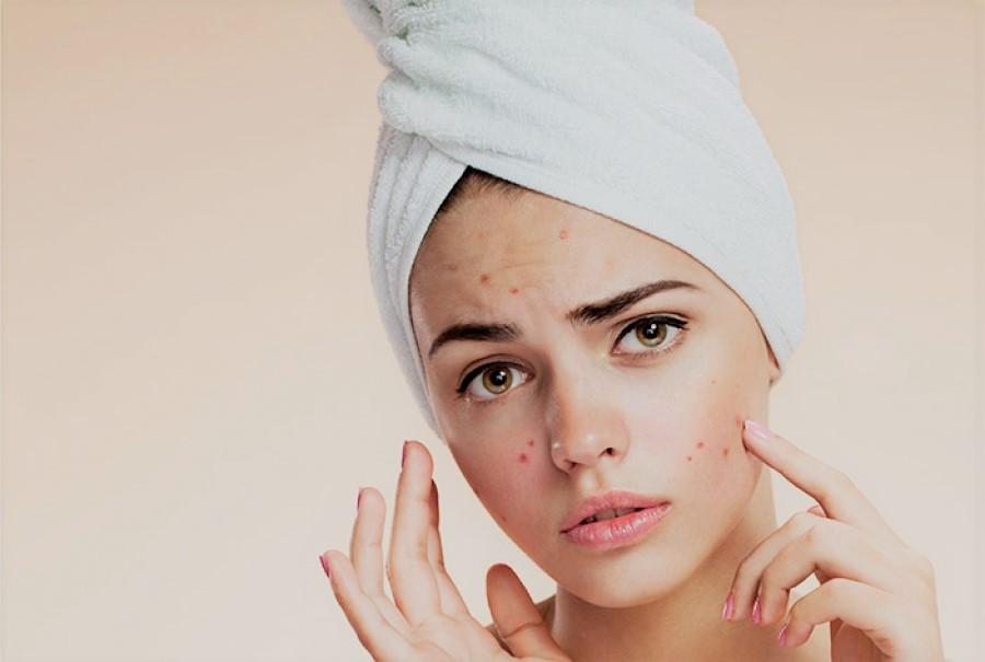 بهترین و قویترین روش درمان خانگی جوش و آکنه و لکههای قهوهای صورت